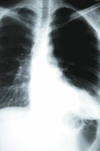 Comment la pneumonie affecte-t-elle l'organisme ?