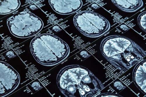 Le comportement antisocial et l'étude IRM du cerveau