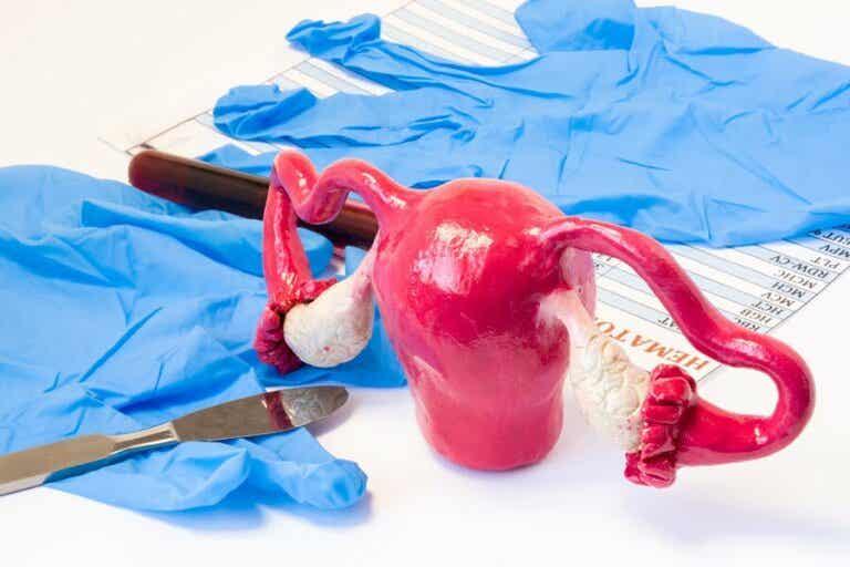Hystérectomie : les différents types