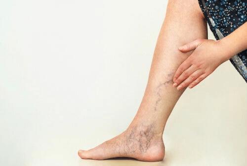 Les varices dénotent d'une mauvaise circulation des jambes