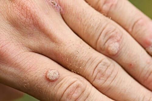 Types de verrues et de traitements