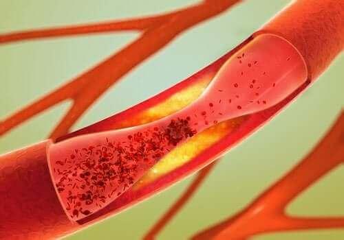 L'huile de canola peut obstruer les artères