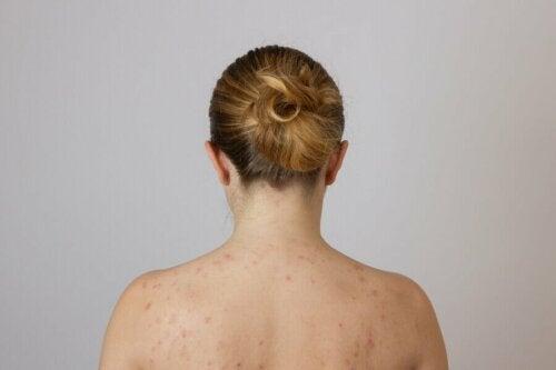 Une femme ayant des boutons de graisse dans le dos