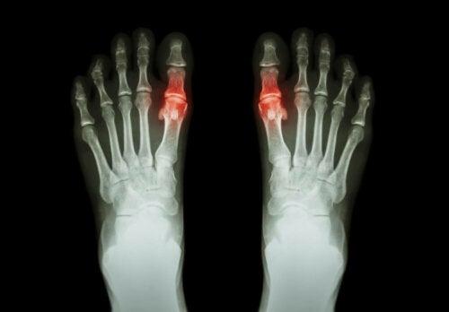 L'arthrite peut consister en l'inflammation de l'articulation des gros orteils