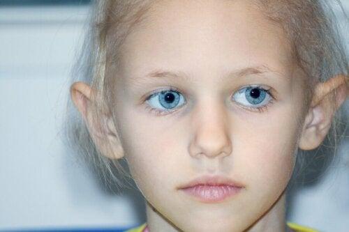 Une jeune fille atteinte de rétinoblastome