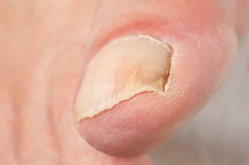 L'onychomycose consiste en l'infection d'un ongle