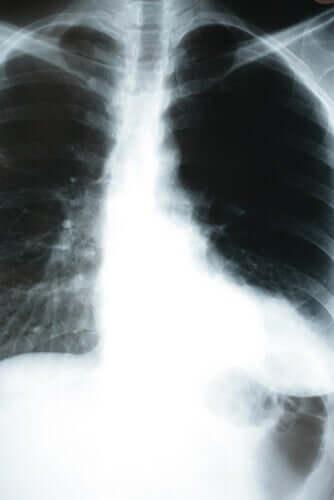 La pneumonie silencieuse observée sur une radio