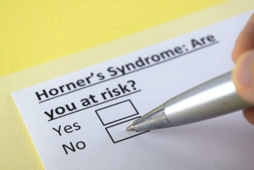 Le syndrome de Claude Bernard-Horner, qu'est-ce que c'est ?