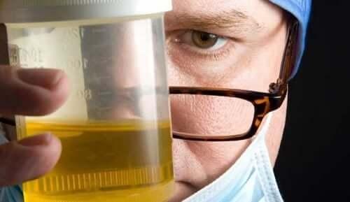Un flacon d'urine
