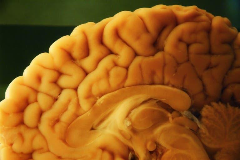 L'autopsie neuropathologique dans le cerveau