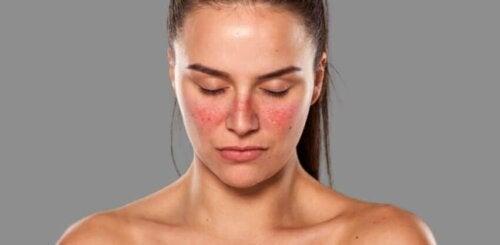 Une femme atteinte de lupus sur le visage