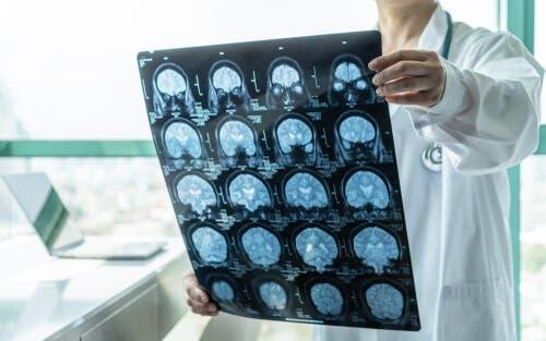 Une IRM du cerveau pour repérer une encéphalite