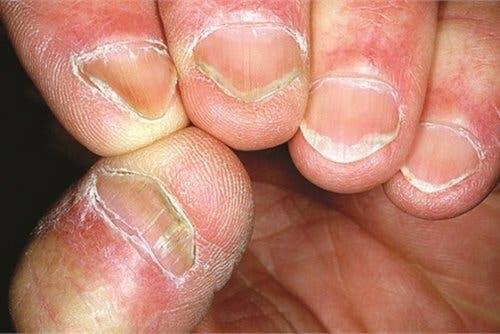 Le syndrome d'Hallopeau provoque une altération de la peau et des ongles
