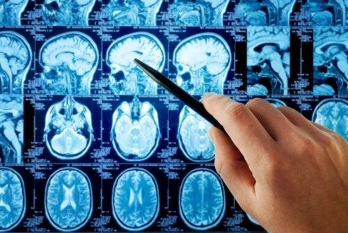 La radio du cerveau d'une personne qui souffre d'une tumeur cérébrale