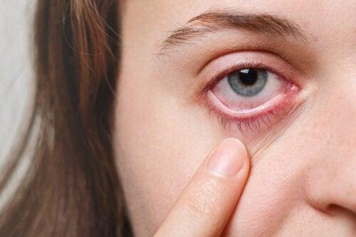 5 remèdes efficaces pour les infections oculaires