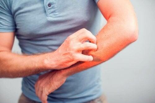 5 remèdes naturels pour calmer les démangeaisons