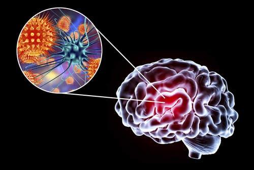 Encéphalite : symptômes, causes et traitement