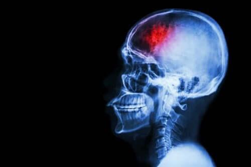 Accident vasculaire cérébral (AVC) : 7 mesures préventives