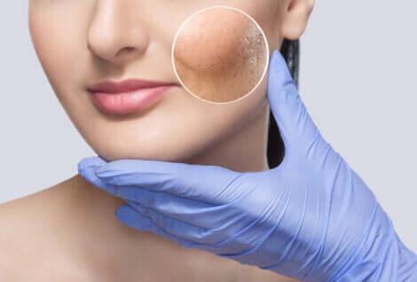 La peau sensible et la réactivité.