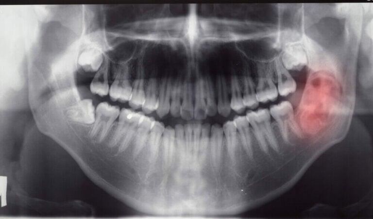 Diagnostic des tumeurs et kystes de la mâchoire