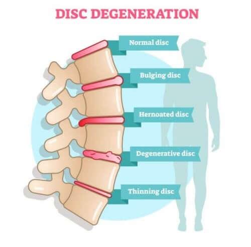 Symptômes de la discopathie dégénérative