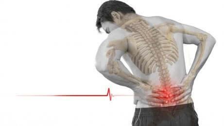 Un homme souffrant de spondylolisthésis