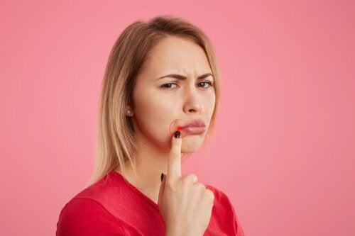 Comment se débarrasser de l'herpès labial ? 5 remèdes utiles