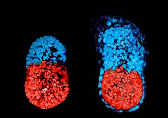 Embryon parasite et fœtus in fœtu