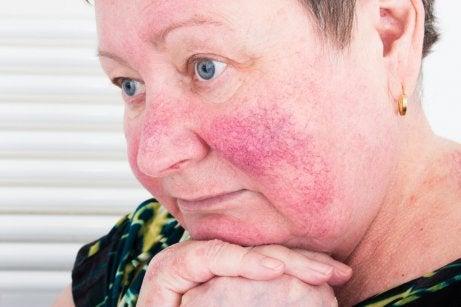 Une femme atteinte de rosacée