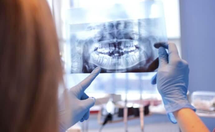 Le développement d'une gangrène diabétique dans la bouche