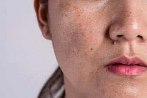 L'hyperpigmentation : pourquoi se produit-elle ?