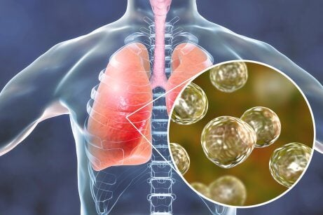 Des granulomes de la sarcoïdose dans les poumons