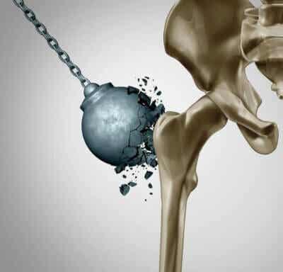 Réduire les dommages de l'ostéoporose après la ménopause