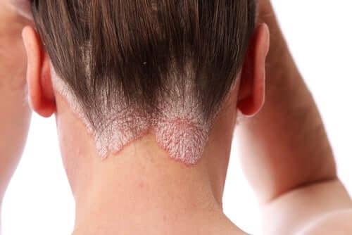 Une femme ayant des plaques de psoriasis du cuir chevelu