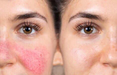 La réactivité de la peau d'une femme.