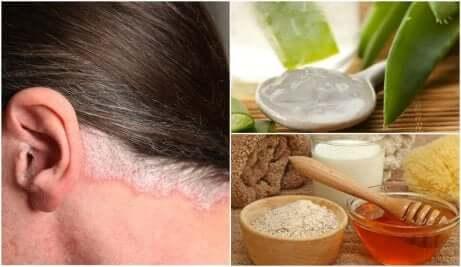 Des remèdes naturels contre le psoriasis du cuir chevelu