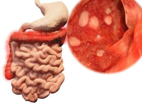 Lorsque l'on mange un aliment qui est tombé par terre, des microorganismes se logent dans les intestins.
