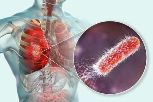 Existe-t-il des bactéries dans les poumons ?