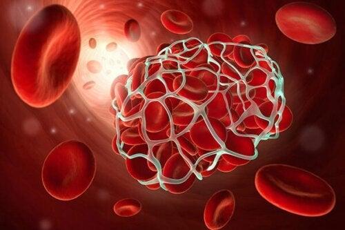 La thrombose peut être provoquée par la prise de contraceptifs hormonaux.