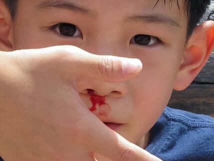 Un enfant qui saigne du nez.