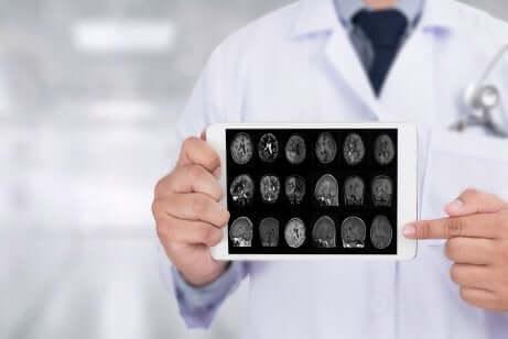 Le traitement de Parkinson et l'état de notre cerveau.