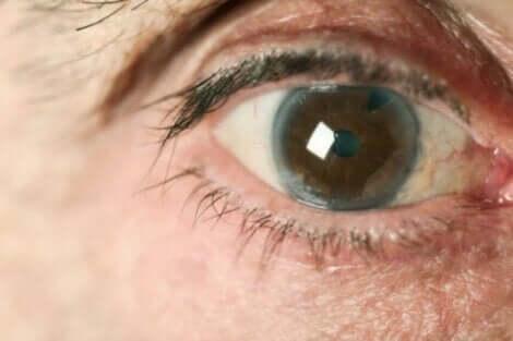 Il existe différents types de glaucome.