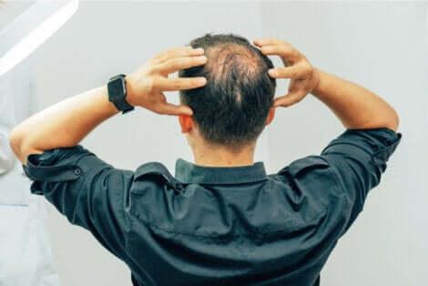 L'alopécie non cicatricielle fait partie des types d'alopécie qui existent.
