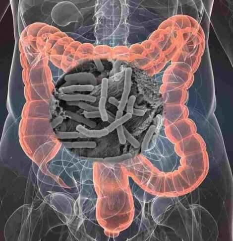 Les maladies chroniques peuvent s'attaquer au microbiote.