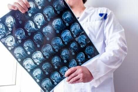 Un médecin qui examine les méninges via une radiologie.