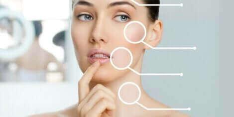 Le Soft Lift s'emploie pour lutter contre le vieillissement de la peau.