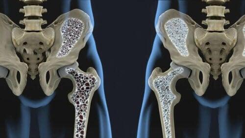 La fragilité des os augmente le risque d'ostéoporose.