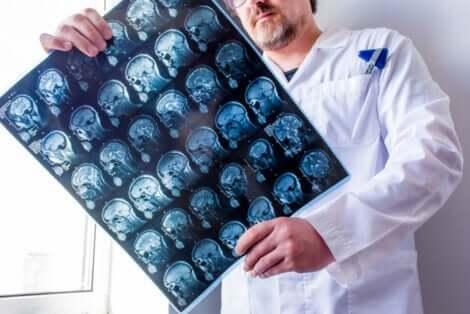 Quels sont les différents types d'épilepsie qu'un médecin peut observer ?
