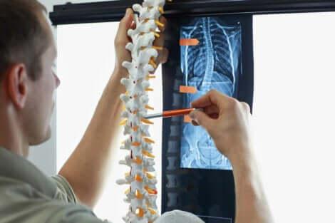 La radiographie d'une colonne vertébrale touchée par la scoliose.