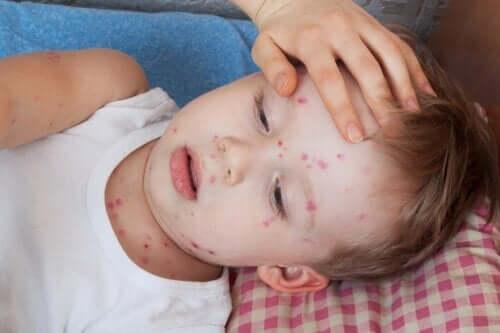 Comment traiter l'urticaire chez les enfants ?
